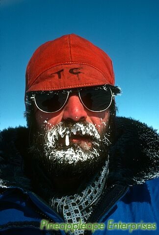gristle beard